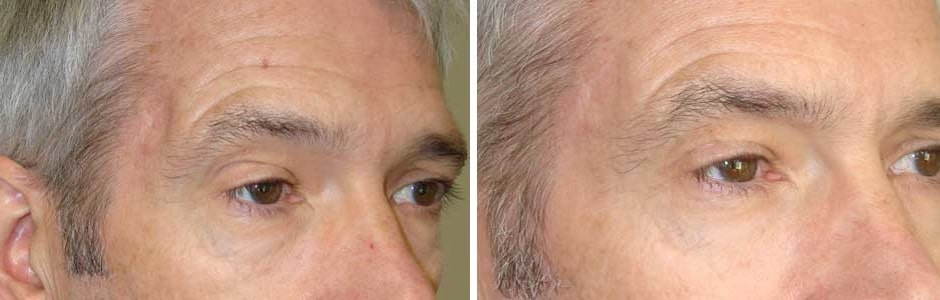 Before (left) and after (right) filler injection right temple hollow