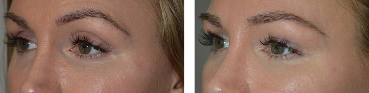 Young female, with hollowness around eyes with sunken eye appearance (left photo). Belotero filler injection in upper eyelids, brows, and under eyes (tear trough deformity) to give more youthful, rested eyes with natural results (right photo).