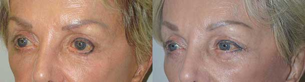 Before (left) and 3 months after (right) bilateral lower eyelid retraction surgery with midface lift and canthoplasty.