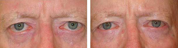 Before (left) and 3 months after (right) bilateral lower eyelid retraction surgery with internal graft and midface lift.
