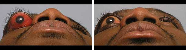 Before (left) and after (right) eyeball socket tumor removal.