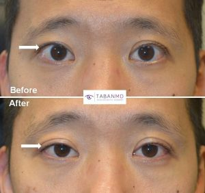 Young Asian man, with history of overcorrected ptosis surgery (by another surgeon) resulting in upper eyelid retraction (upper eyelids too high) underwent revision upper eyelid retraction surgery. Before and 2 months after upper eyelid retraction repair photos are shown.