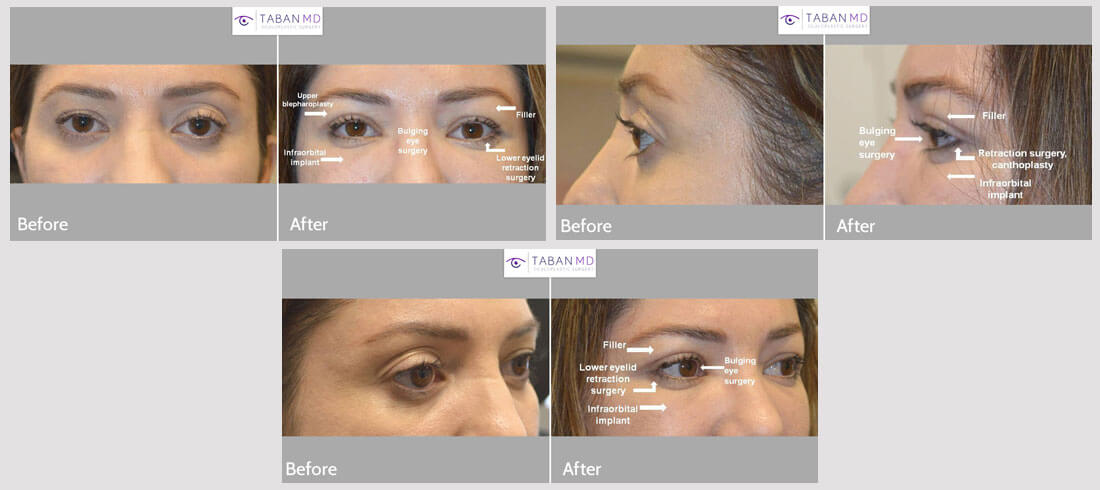 Woman who was unhappy about her eye shape and eye asymmetry, underwent eye plastic surgery including cosmetic bulging eye orbital decompression, infraorbital rim silicone implant, lower eyelid retraction surgery with canthoplasty, right upper blepharoplasty and left upper eyelid filler injection. Note more almond shaped and symmetric eye appearance in the after photo taken 1 month after almond eye surgery.
