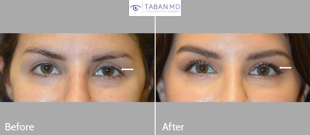 Young beautiful woman, with congenital eye asymmetry, underwent left upper eyelid internal ptosis surgery and left lower eyelid botulinum toxin injection, to create better eye symmetry.