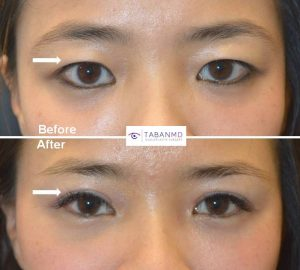 Young Asian woman underwent Asian upper blepharoplasty to have more defined upper eyelid crease. Before and 3 months after Asian eyelid surgery photos are shown.
