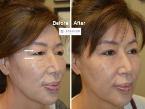 65 year old Asian female, underwent Asian eyelid surgery (double eyelid surgery) and lower blepharoplasty, resulting in more youthful, rested, natural eye appearance.