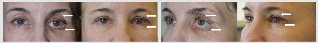 50 year old female, with history of left eye trauma resulting in orbital fracture with sunken eye and severe left lower eyelid retraction with scarring, underwent left orbital fracture repair with orbital implant, left lower eyelid retraction surgery with skin graft, bilateral blepharoplasty, and eyelid filler injection. Before and 3 months after eyelid surgery photos are shown.
