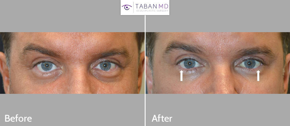 Lower eyelid retraction repair in a man who suffered from lower eyelid retraction after botched lower blepharoplasty. Note improvement in eye shape, going from rounded eyes to more almond shaped eyes.