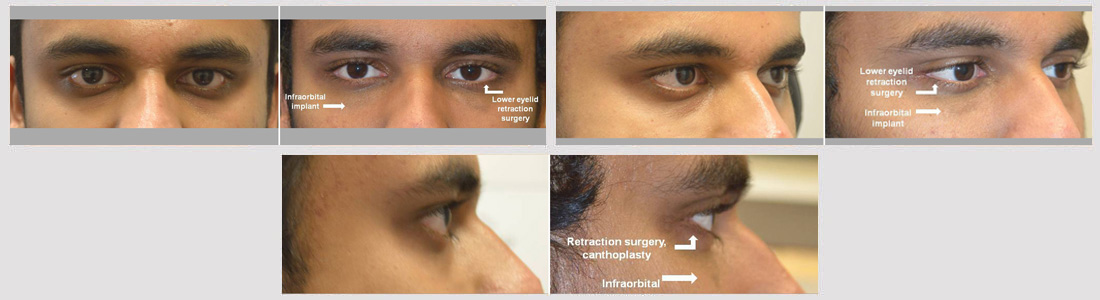 Young man, with sad tired eye appearance, underwent lower eyelid retraction surgery with canthoplasty (almond eye surgery) plus infraorbital rim silicone implant. Note improved eye shape with more almond eyes.