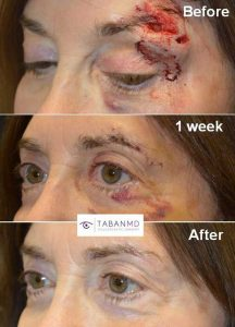 70+ year old woman, who suffered from eyelid/brow laceration from a fall, underwent repair with quick healing.
