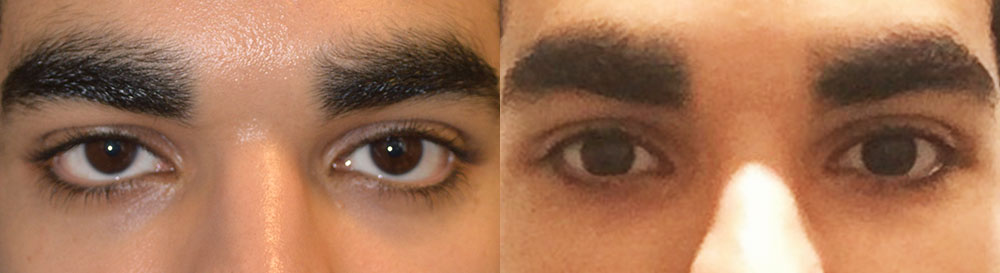 Young male, with inherited lower eyelid retraction and sclera show, underwent Almond Eye Surgery (lower eyelid retraction surgery with alloderm spacer graft, canthoplasty, tear trough implant) to give more attractive almond-shaped eyes. Before and 3 months after surgery photos are shown.