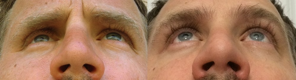 Before (left) 40 year old male, with history of multiple large orbital fractures, with significant enophthalmos (sunken eye) and cheek fracture with sunken cheek. After (right) 4 months after right orbital fracture surgery, enophthalmos (sunken eye) surgery with orbital floor implant, and cheek implant.