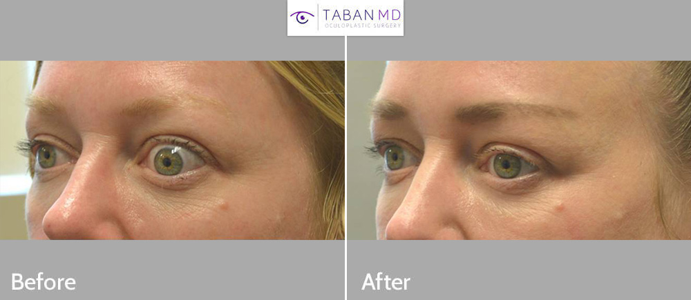 Beautiful woman, with severe left eye changes due to Graves thyroid eye disease with inability to close her left eye, underwent scarless left orbital decompression and eyelid surgery