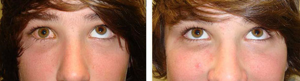 Left photo shows right orbital blow out fracture with inability to move the eye up. Right photo is 6 weeks after orbital fracture surgery with eye movement restored.