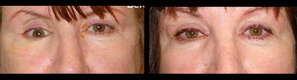 Before (left) and after (right) sunken eye surgery (enophthalmos surgery) with right orbital implant placement.