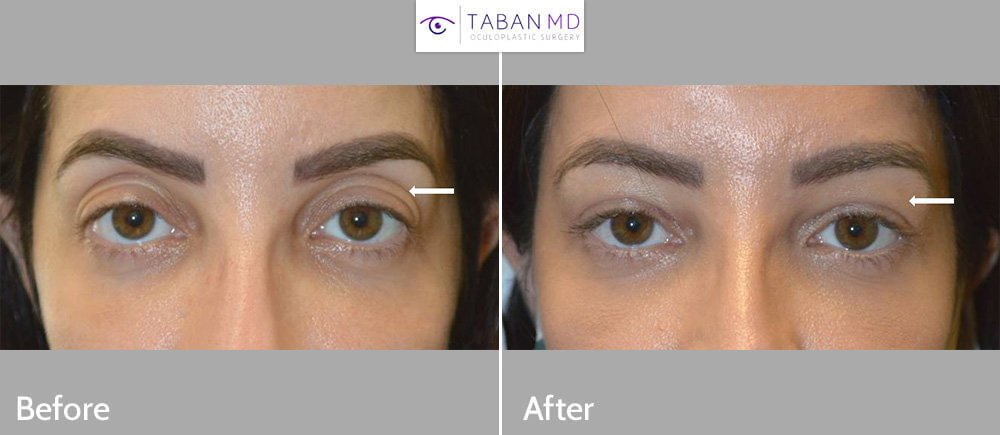 Young beautiful woman, with loose upper eyelid skin and upper eyelid hollowness, underwent upper blepharoplasty plus upper eyelid filler injection plus canthoplasty. Note resultant more youthful eye appearance.