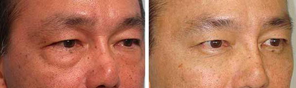 Before (left) and after (right) scarless transconjunctival lower blepharoplasty.