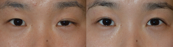 Before (left) Young female, with asymmetry upper eye folds and top eyelid ptosis. After (right) 3 months after Asian upper blepharoplasty and left top eye skin ptosis surgery (droopy eyelid surgery). Note natural, more symmetric eyes.