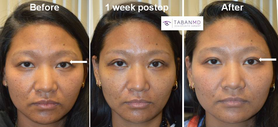 Young Asian woman, with asymmetric upper eyelid crease, underwent customized Asian upper blepharoplasty (double eyelid surgery). Here before, 1 week postop, and 3 months postoperative photos are shown.