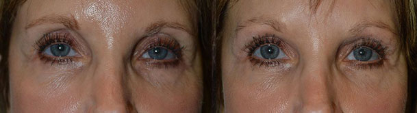 Before and immediately after FILLER (Belotero) injection in both upper eyelids to correct significant upper eyelid hollowness after prior upper blepharoplasty in a 59-year-old female.