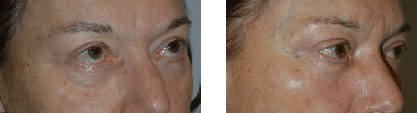 Before and immediately after filler (Belotero) injection in hollow lower eyelids (tear troughs) in a 67-year-old female.