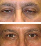 Droopy Eyelid Surgery Before and Ater