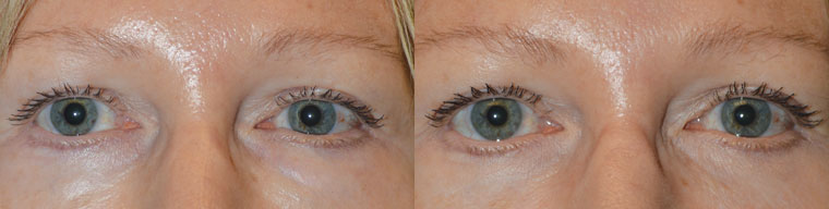 Before (left) Middle age female, with under area eye contour irregularities after previous lower blepharoplasty and multiple filler injections. After (right) 2 months after revisional lower blepharoplasty with fat repositioning (and dissolving of fillers).