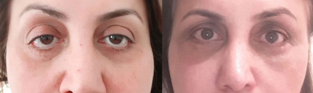 46-year-old female from the Netherlands, with lower eyelid retraction after botched lower blepharoplasty in the Netherlands with inherited negative canthal tilt, bulging eyes and droopy upper eyelid (ptosis), underwent corrective revision lower eyelid retraction surgery, orbital decompression surgery for bulging eyes, and droopy upper eyelid ptosis surgery. Before and 3 months after cosmetic eye plastic surgery selfie photos are shown. Note the improvement in eye shape change (and function).