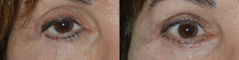 Before (left) Middle age woman with multiple prior eyelid surgeries and blepharoplasty, resulting in right lateral canthal angle distortion and lowering, unnatural right lower eyelid contour, and droopy upper eyelid. After (right) 2 months after revisional eyelid surgery, right canthoplasty, right lower eyelid retraction surgery (internal, with midface lift, without graft) and lower eyelid contour surgery. Fat injection in upper eyelids.