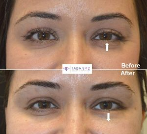 Young woman complained of lower eyelid asymmetry with left lower eyelid higher, especially when smiling. She received botulinum toxin injection in left lower eyelid which created better symmetry during smiling. Before and after treatment photos are shown (during smiling).