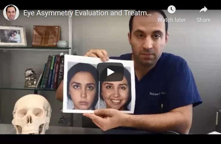 eye-asymmetry1