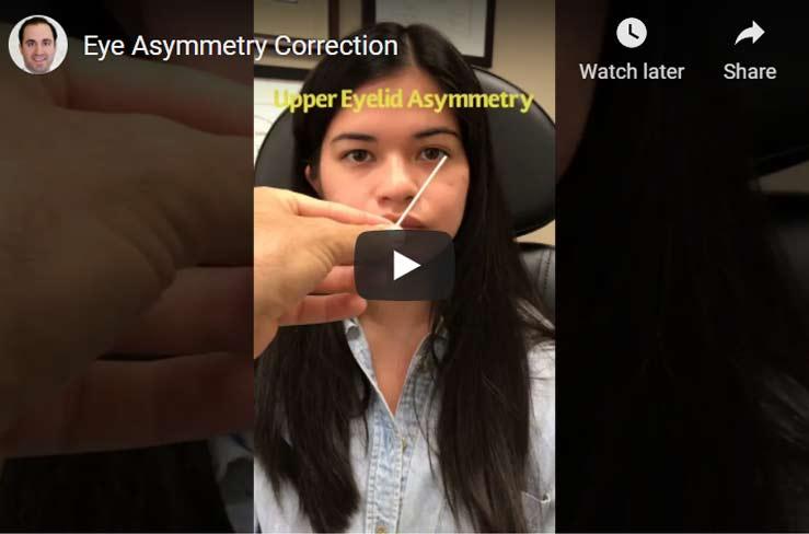 eye-asymmetry2