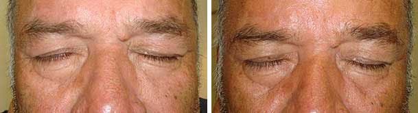 Before (left) and after (right photo) of right upper eyelid gold weight placement. Note the right eye closes completely after the procedure.