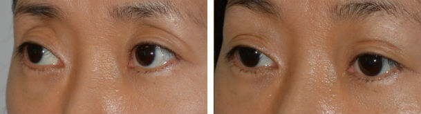Before, prior aggressive upper blepharoplasty resulting in hollow upper eyelids, and 2 months after filler injection in upper eyelid-brow area.