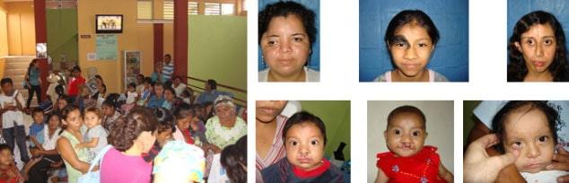 Guatemala medical aid eye surgeons