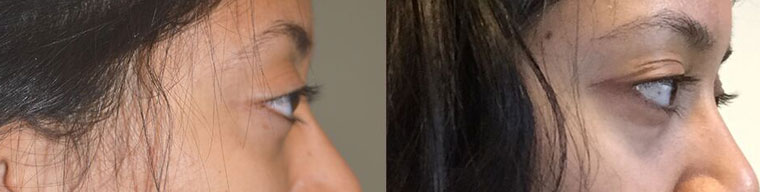 Young girl with inherited bulgy eyes (from large myopic eyes). Note eyeball anterior to brow bone (right) and 2 months after cosmetic eye socket surgery (left). Note the eyeballs are now posterior to brow bone. (In future, she would benefit from filler or fat injection around eyes).