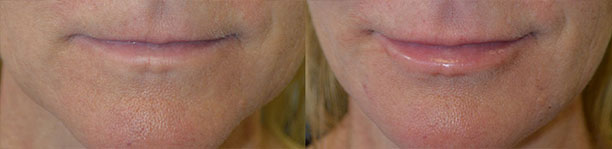 """Middle age woman, complains of saggy lower face and jowls, looking older. She did not want a facelift, but rather wanted nonsurgical """"liquid facelift"""". We notice uneven jawline with hollowness between the chin and lower jaw area."""