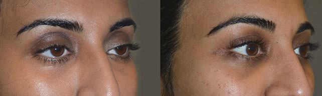 Before (left) 32-year-old female, with droopy upper eyelids. After (right) 3 months after cosmetic droopy upper eyelid surgery and fat injection.