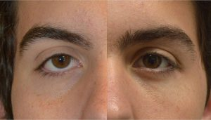 18-year-old male, with congenital lower eyelid retraction with negative canthal tilt and droopy upper eyelids (ptosis), underwent almond eye surgery including lower eyelid retraction surgery (with internal alloderm spacer graft), canthoplasty, and upper eyelid ptosis surgery. Before and 3 months after cosmetic eye transforming surgery photos are shown.