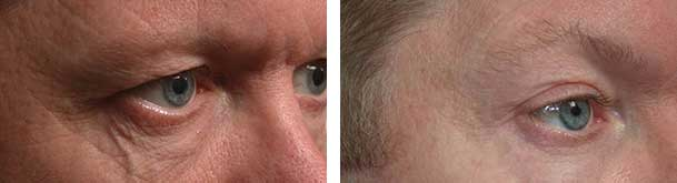 Before (left) and after (right) lower eye skin vein removal by sclerotherapy.