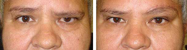 Before (left) and 6 weeks after (right) left paralytic brow lift (note scar is healing well).