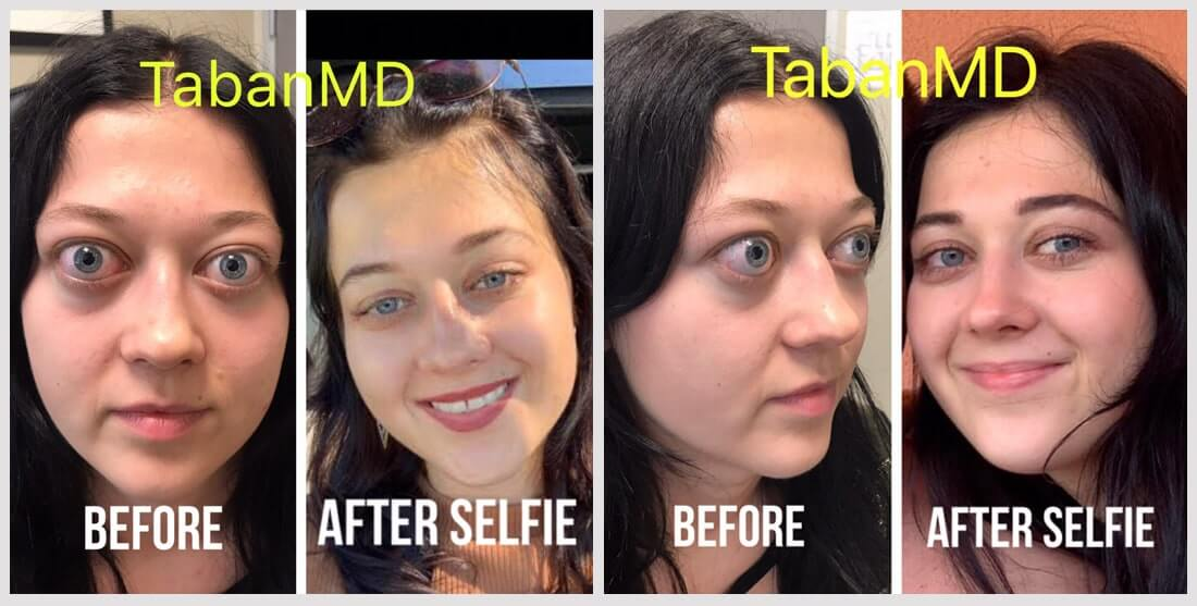 Young beautiful woman with severe Grave thyroid eye disease traveled from Slovakia to Los Angeles and underwent life-changing treatment including scarless orbital decompression surgery, lower eyelid retraction surgery, and upper blepharoplasty, to restore more natural eye shape and function. Before and 3 months after surgery results are shown.