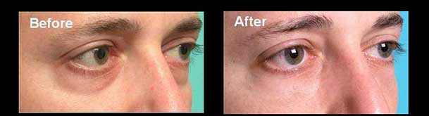 Before (left) and after (right) Restylane filler injection to lower eyelid hollows (dark circles).