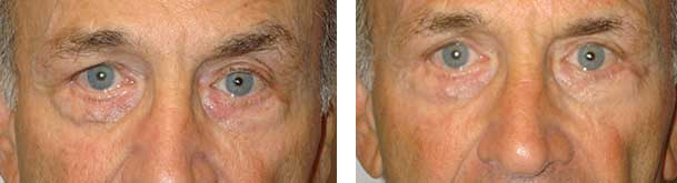 Before (left) and 3-months after (right photo) of removal of the lower eye skin vein.