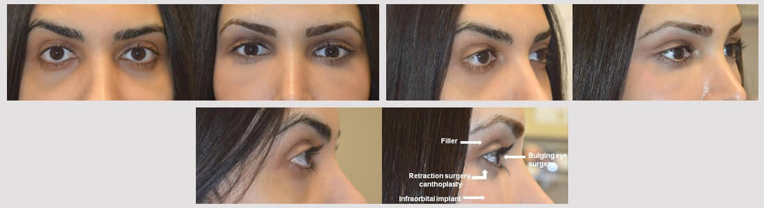 27 year old transgender female, underwent eye transformation almond eye surgery including lower eyelid retraction surgery with canthoplasty, infraorbital rim silicone implant, orbital decompression bulging eye surgery, and upper eyelid filler injection. Before and 1 month after surgery photos are shown. Note more upturned eye shape (fox eyes) with positive canthal tilt.