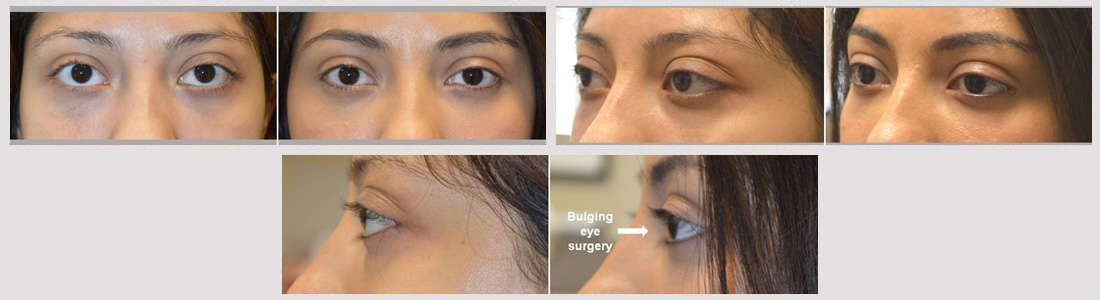 Young beautiful woman with genetic prominent bulging eyes underwent scarless cosmetic orbital decompression surgery.