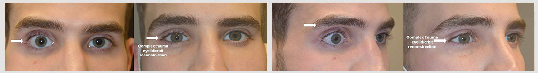 Young man, with severe major right eye trauma, resulting in significant sunken eye and eyelid retraction, who had undergone one previous unsuccessful orbital fracture repair (by another surgeon), underwent revision right orbital implant (removal of old and placement of new implant) plus lower eyelid retraction repair plus upper eyelid filler injection. Note more balanced eye appearance.