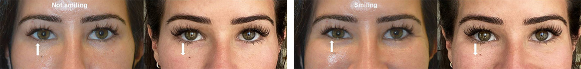 Beautiful young woman with lower eyelid asymmetry (right lower eyelid higher, especially during smiling) underwent right lower eyelid botulinum toxin injection. Note improved lower eyelid symmetry, both at rest and during smiling.