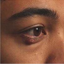 Reconstructive Eye Plastic Surgery