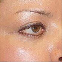 Orbital (eye socket) Surgery